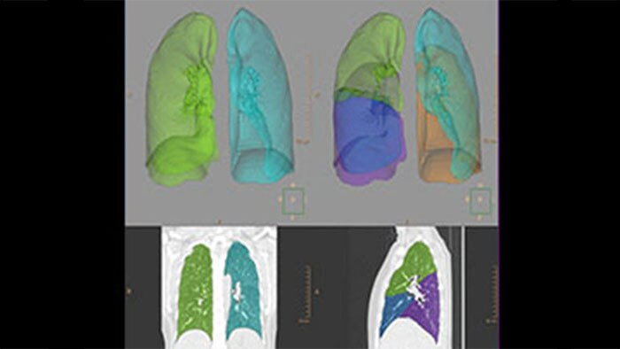 Radiological scan images of human lungs