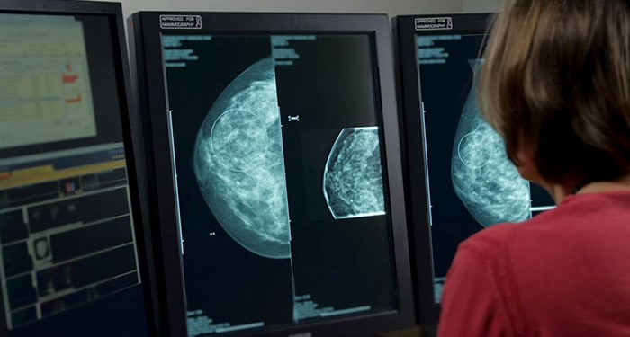 A video about PACS station into a mammography workstation