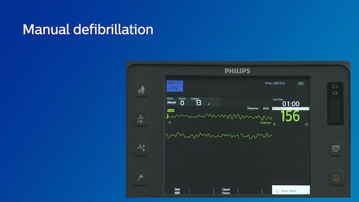 Manuel defibrillation video