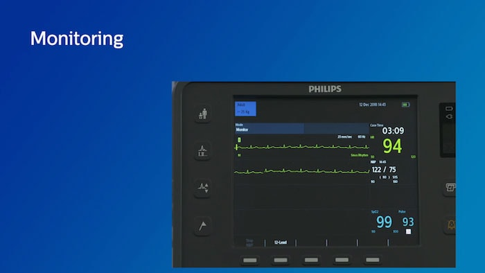 Monitoring-using the HeartStart Intrepid monitor and defibrillator video