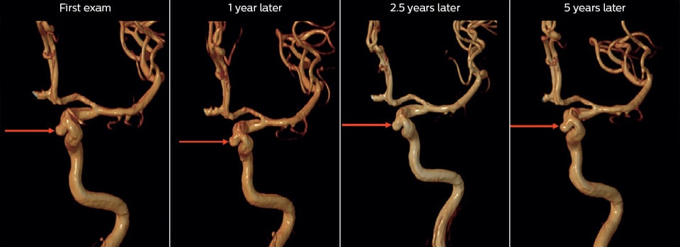 5years mra followup of unruptured aneurysm
