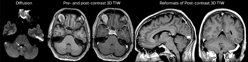 MRI in Emergency Department | Philips Healthcare