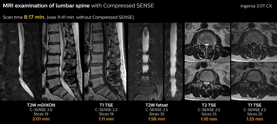 MRI examination of lumbar spine with Compressed SENSE