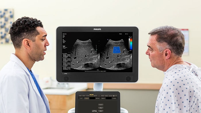Philips Healthcare | MaxVue Ultrasound Imaging