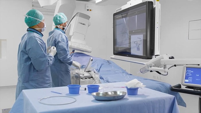 Philips SmartCT in trans arterial chemo embolization