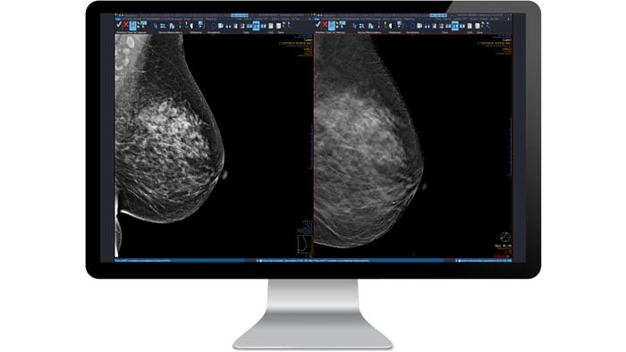 mammography no icon