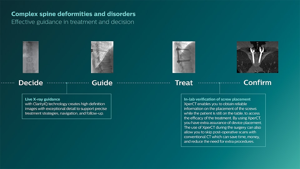 Peripheral artery disease clinical solutions
