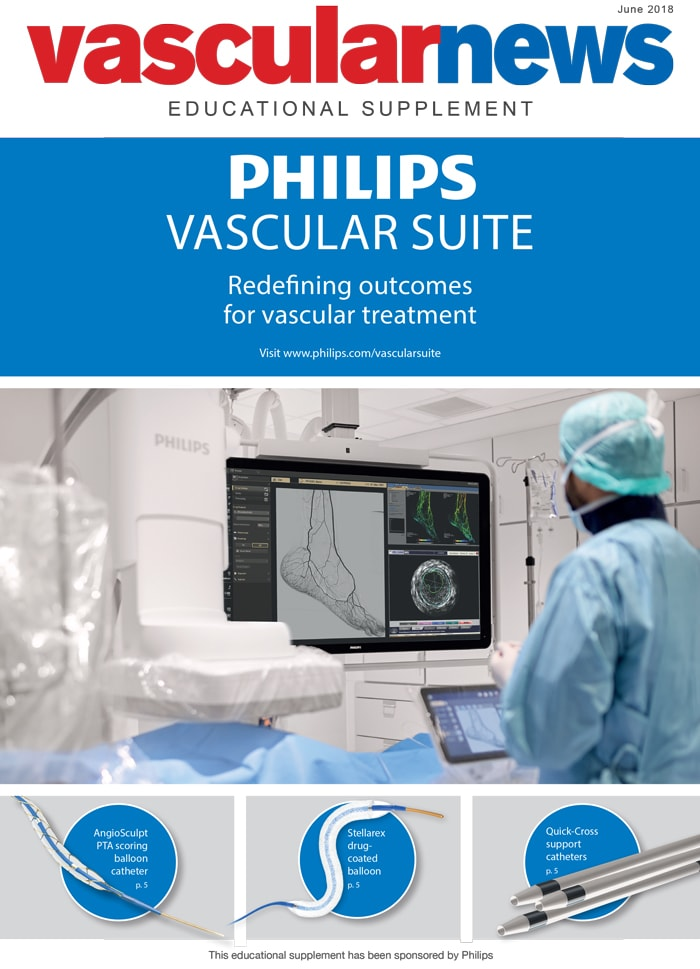 Philips Vascular suite