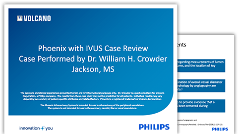 crowder-ivus-case-review