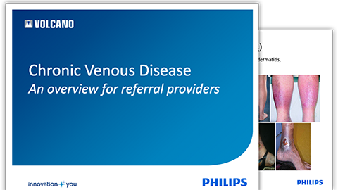 chronic-venous-insufficiency-overview