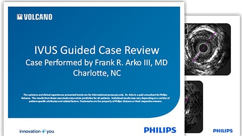 ivus-guided-case-review