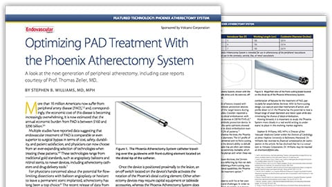 optimizing pad treatment download (.pdf) file