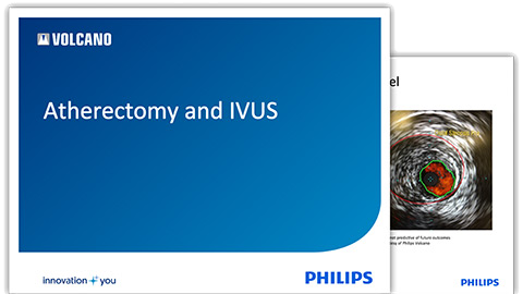 atherectomy-ivus-images