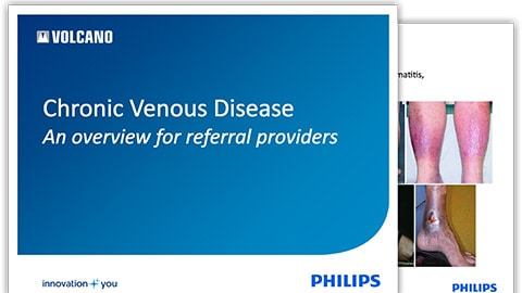chronic-venous-disease-overview