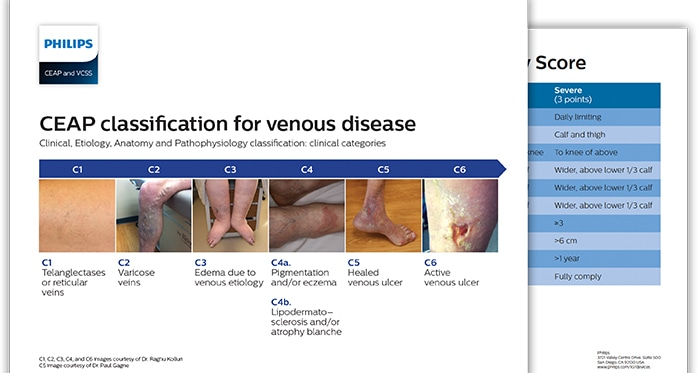 chronic-venous-insufficiency-images (opens in a new window) download (.pdf) file