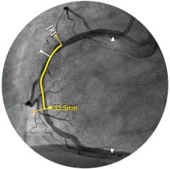intrasight sync4 2 ivus co reg