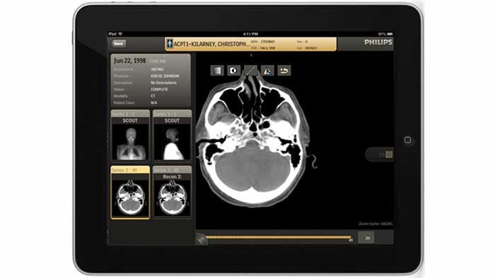 IntelliSpace Enterprise controlling healthcare costs
