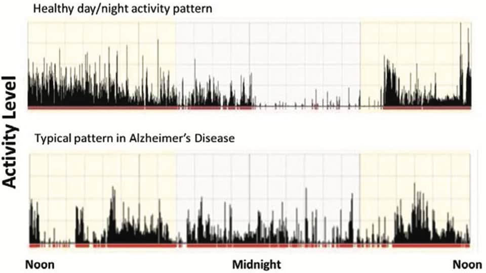 Alzheimers study data activity level chart
