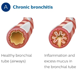 Effect of chronic bronchitis on the bronchial tubes