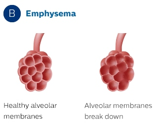 Effect of Emphysema on the Alveolar
