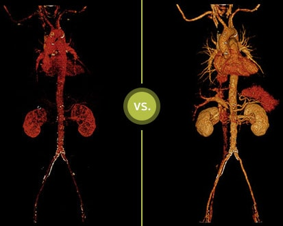 Conventional CT vs IQon Spectral CT