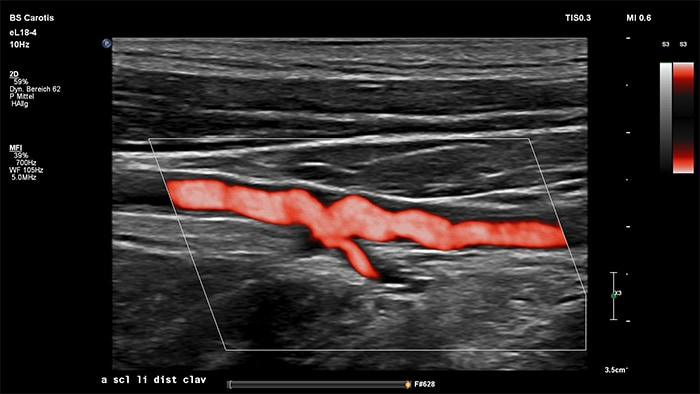 Image with MicroFlow Imaging vascular ultrasound