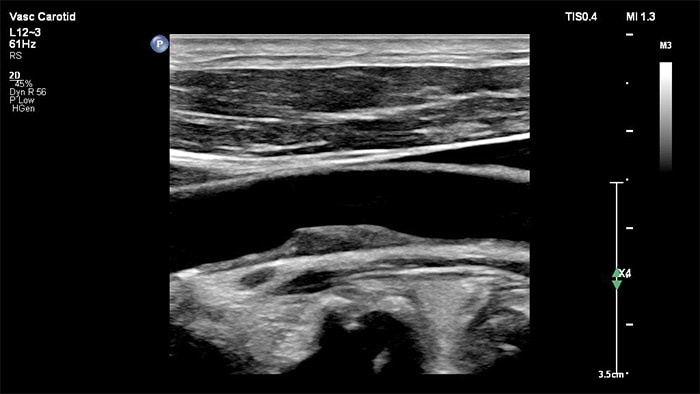 Example of an image retrieved with the XRES Pro vascular ultrasound