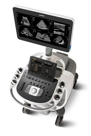 epiq elite ultrasound machine