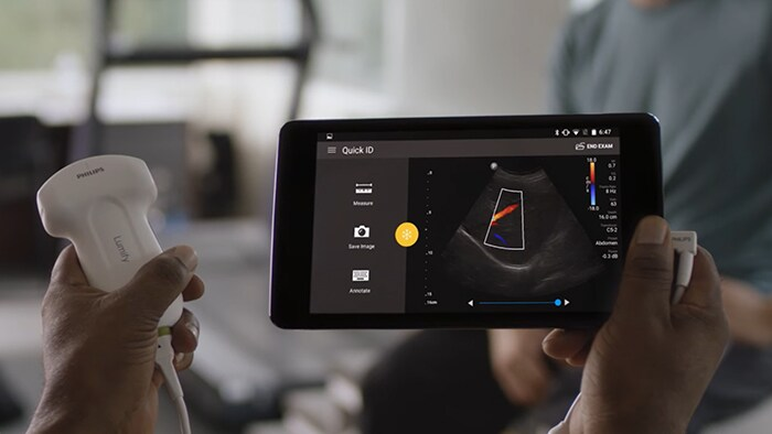Philips Lumify - Ultrasound on your compatible smart device
