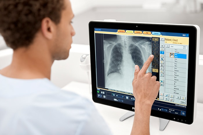 Radiography   Philips Healthcare