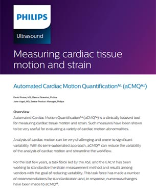 measuring-cardiac-tissue-motion-and-strain-white-paper