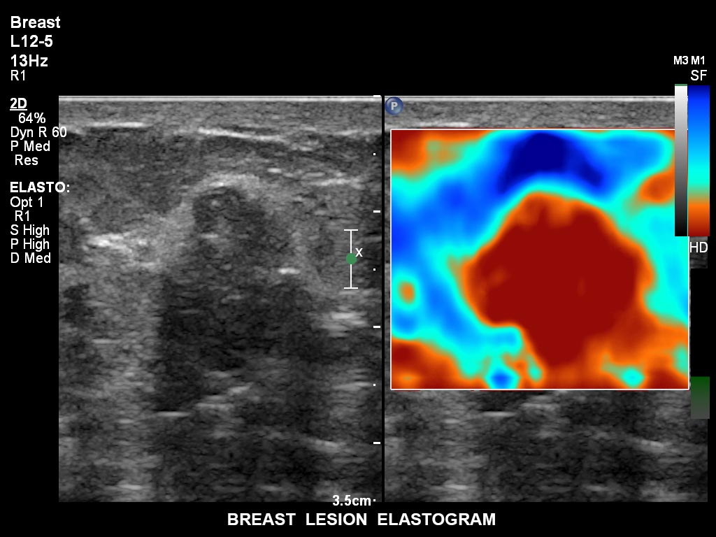 ultrasound first trimester image clinical