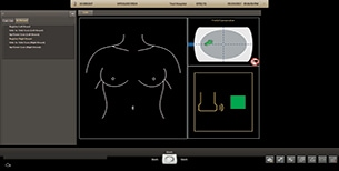 Philips AI Breast transducer registration display
