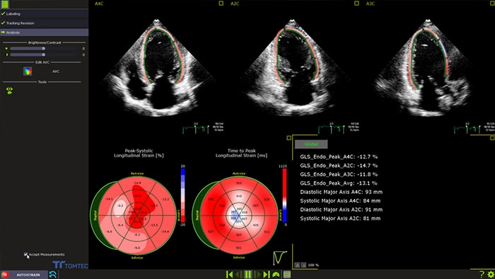 Serving the Heart: The Impact of 3D and Strain Echocardiography for COVID-19 patients