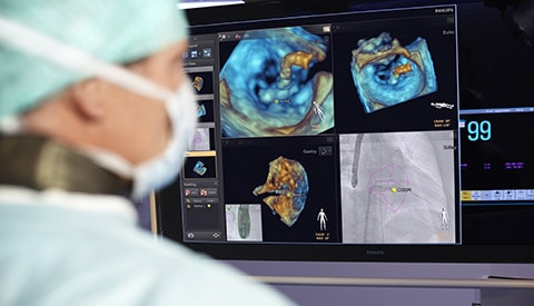 Cardiology solutions with live image guidance