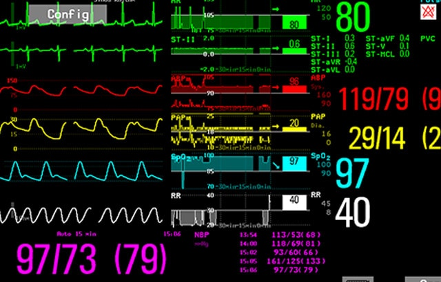 Image showing the Horizon Trends screen view in a patient monitor.
