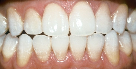 Whiten Teeth In Office Or At Home Philips Zoom
