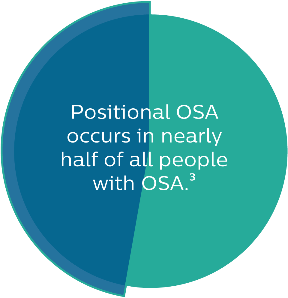 Positional OSA is more common than you might realize