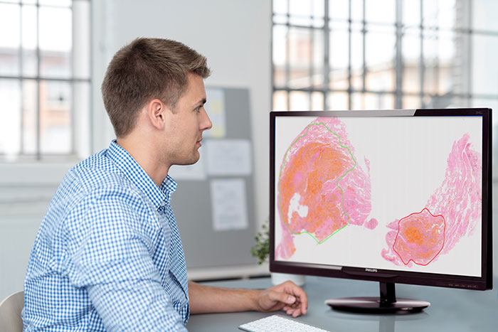 Philips Digital & Computational Pathology
