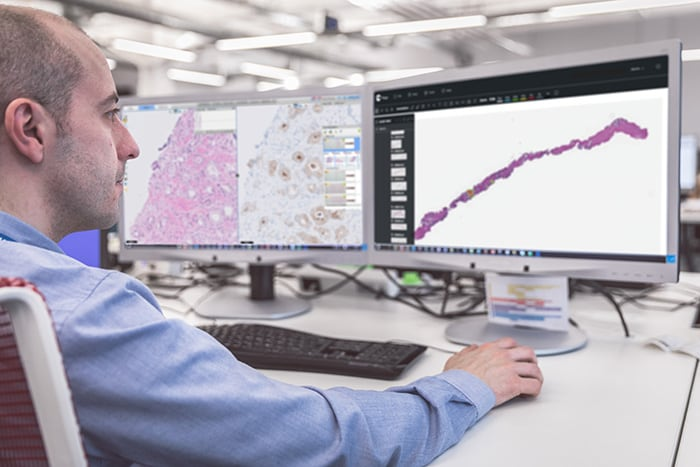 Philips and Paige bring Artifical Intelligence (AI) to clinical pathology diagnostics