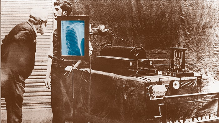 How Philips has been advancing patient care with X-ray for more than a century