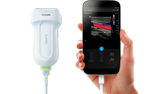 philips-lumify-portable-ultrasound-solution